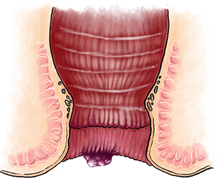 Hemorrelax outer hemorrhoid
